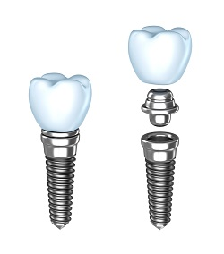 Dental Implants Yorktown Heights NY