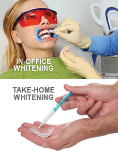 teeth-whitening-options
